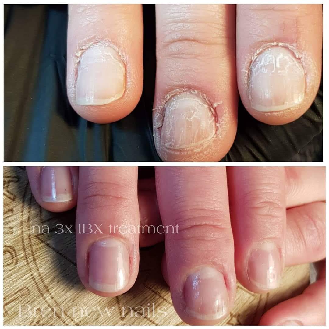 Nagelstudio raalte helpt bij nagelproblemen geen camouflage maar een echte oplossing